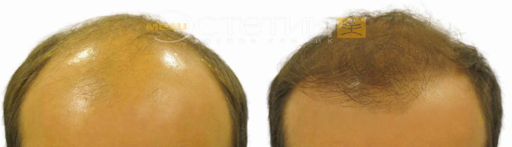 Какое масло для роста волос пить
