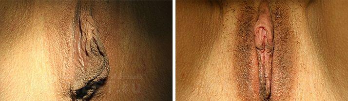 Фото увеличенные половые губы фото 587-27