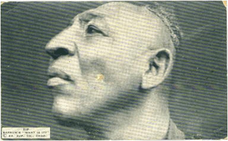 Уильям Генри Джонсон: «Зип Булавочная Головка»