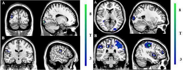 Выяснилось, что при совершении рискованных платежей активируются участки мозга, связанные с негативными эмоциями.